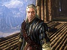 Vdeo The Witcher 2: Gameplay: Asedio